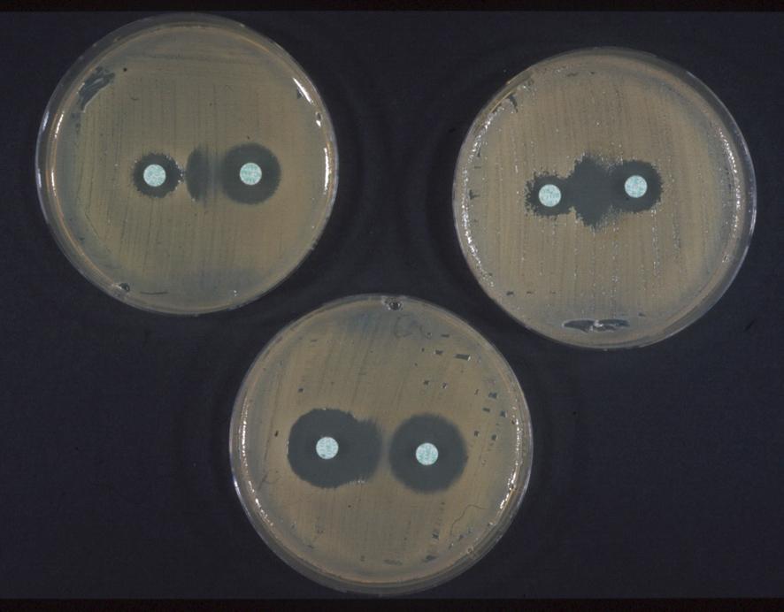 bacterie klebsiella oxytoca cauza papilomelor pe pleoape