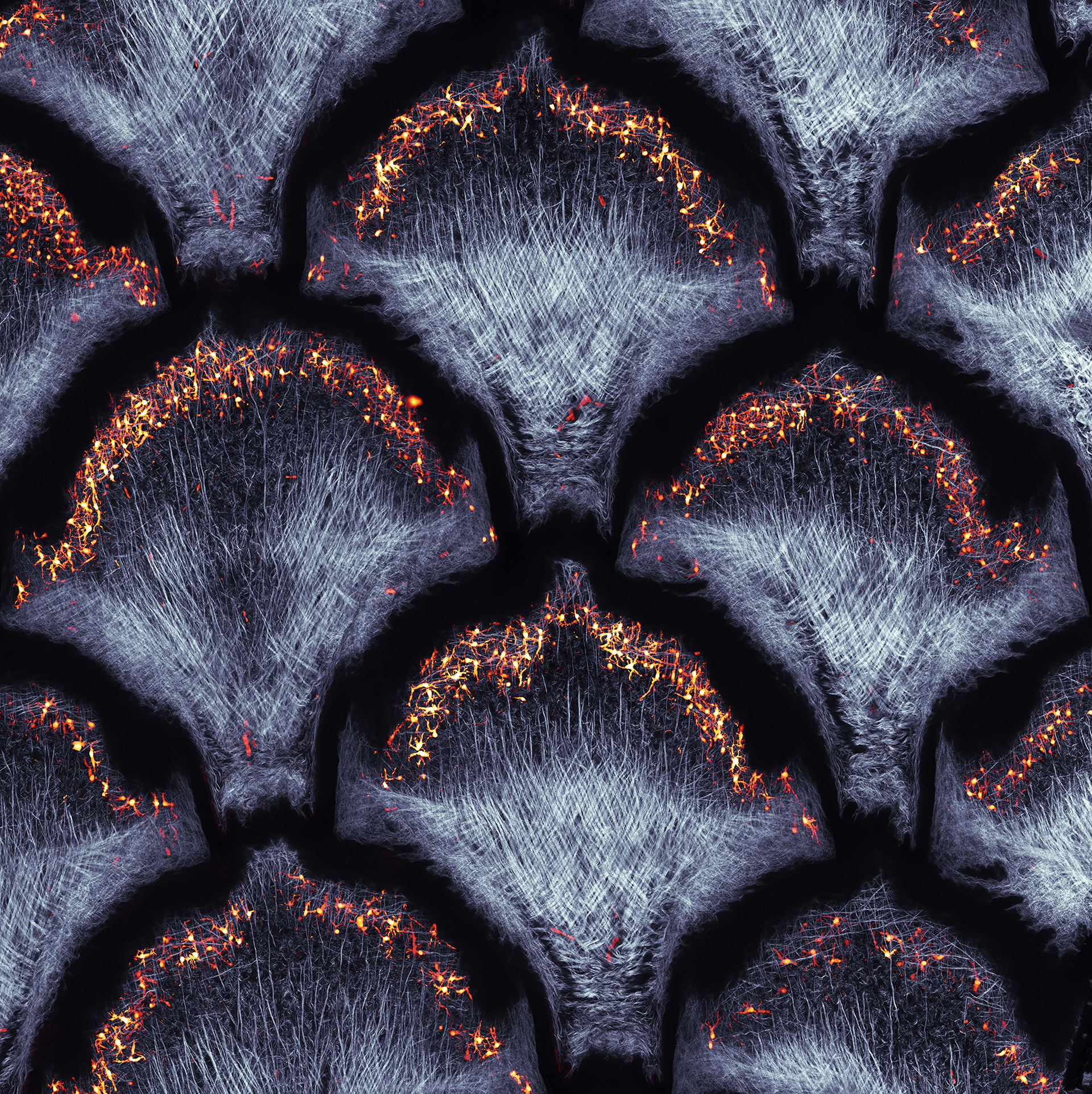 June 2021 - Timin - Collagen fibers and dermal pigment cells